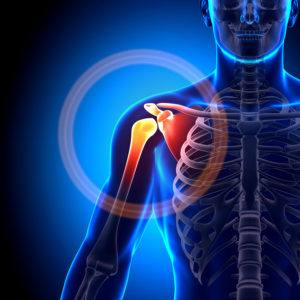 Rotator Cuff Injuries Picture