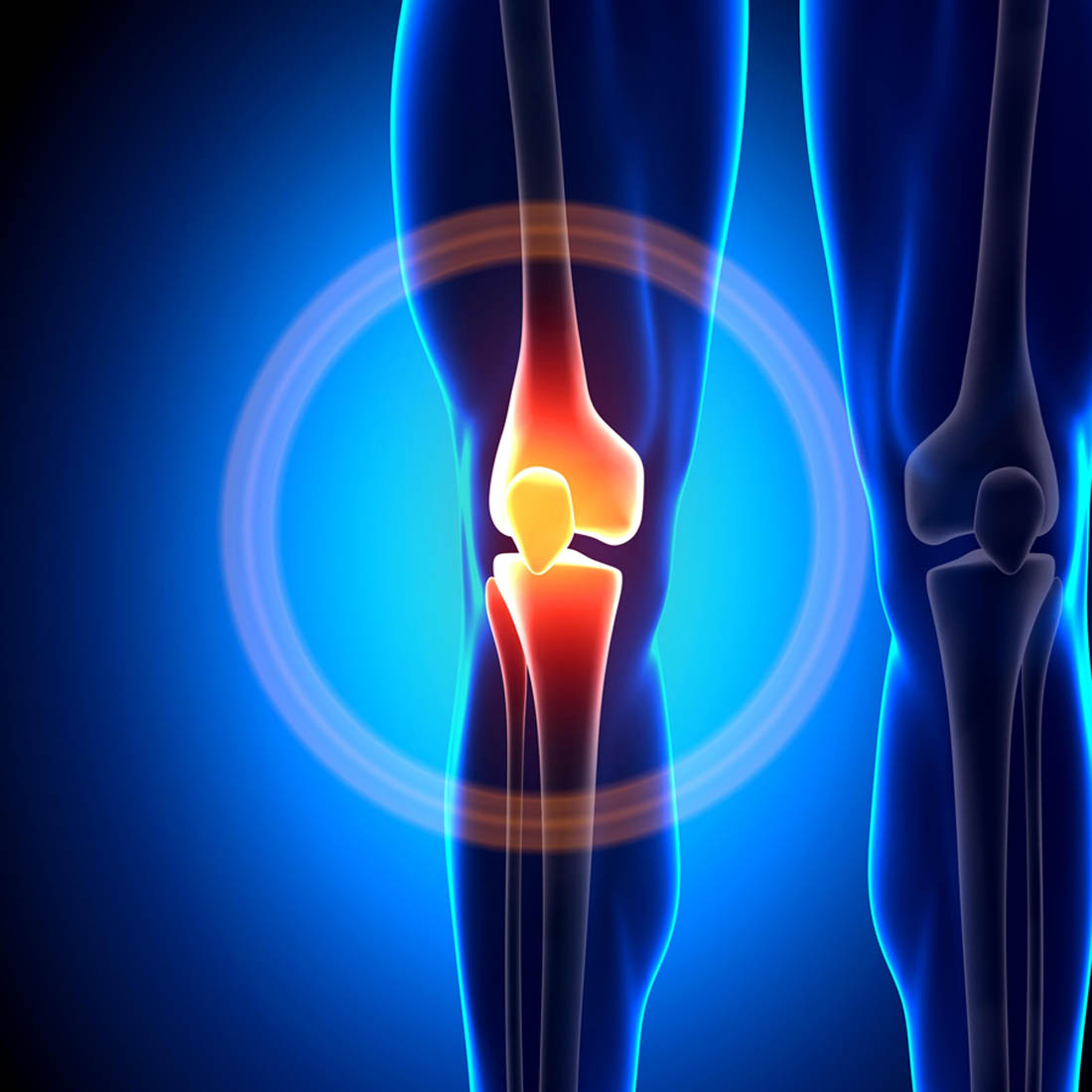 Joint Knee Replacement