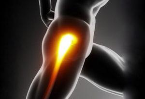 Hip Procedures Picture
