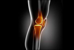 Top Myths about Arthritis: Knowing the Facts Can Help You Manage it Better Picture